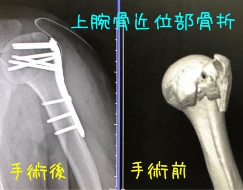 上腕骨近位端骨折
